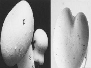 شکل طبیعی و غیرطبیعی قارچ